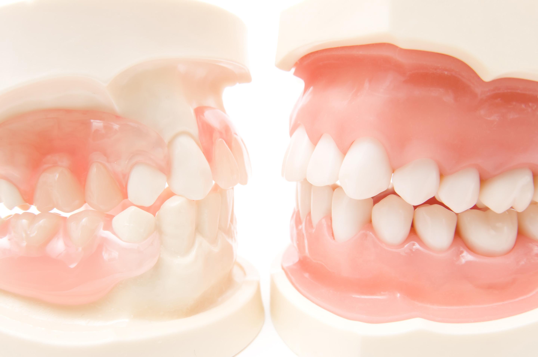 噛み合わせを重視し、歯槽膿漏や顎関節症を防ぎます